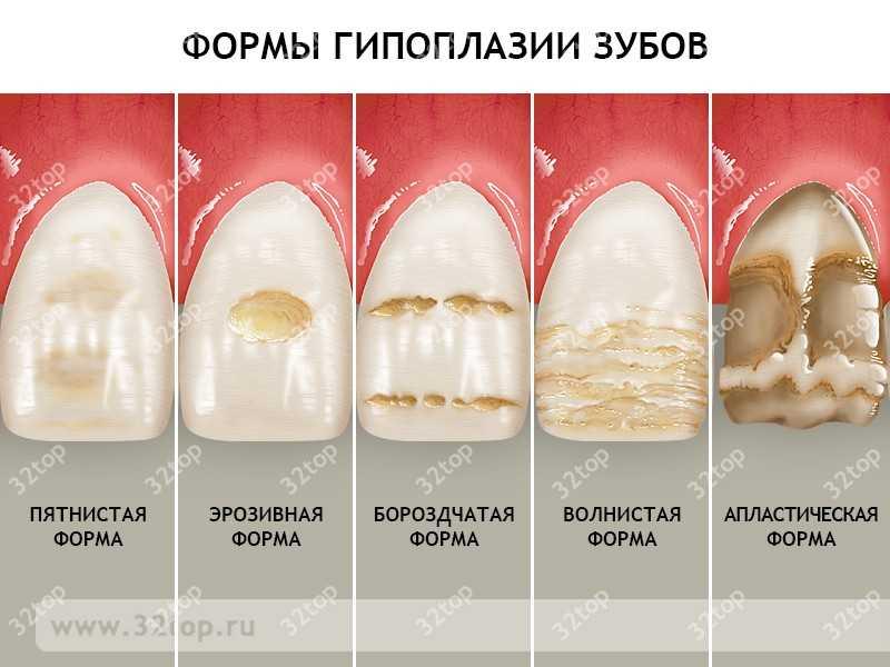 Где лутчше делать зубы в краснодаре форум фото 798-470