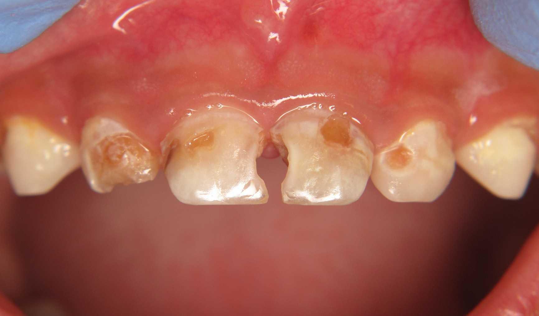 Молочные зубы, поражённые кариесом