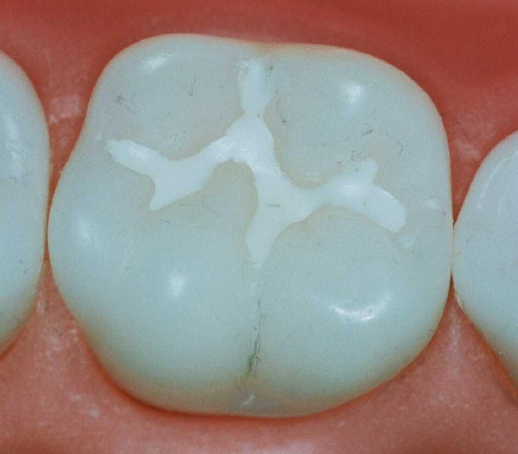 Постоянная пломба за зубе