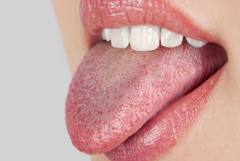 запах железа изо рта у собаки